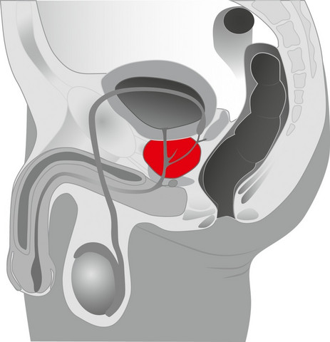 Prostate plug - Prostan hierontaan ja hyväilyyn. Eturauhasen hieronta lisää useimmiten miehen seksuaalista nautintoa.