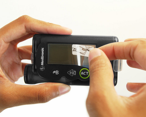 Medtronic, Insuliinipumpun näytön suojakalvo