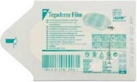 Tegaderm™ Film 6 x 7 cm, 100kpl